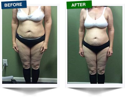 Weight Loss Rochester NY Ultra Slim Female