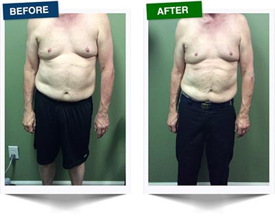 Weight Loss Rochester NY Ultra Slim Male