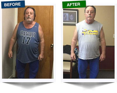 Weight Loss Rochester NY Weight Loss Testimonial - Fred Front View