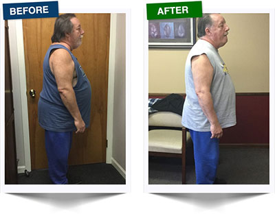 Weight Loss Rochester NY Weight Loss Testimonial - Fred Side View