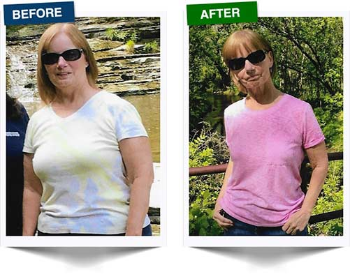 Weight Loss Rochester NY Weight Loss Testimonial - Kathy Before and After
