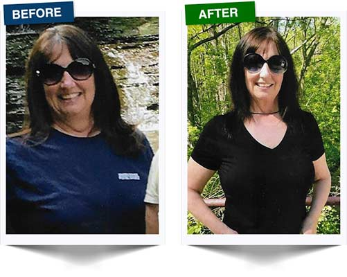 Weight Loss Rochester NY Weight Loss Testimonial - Margaret Before and After
