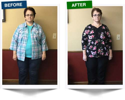 Weight Loss Rochester NY Weight Loss Testimonial - Stacy