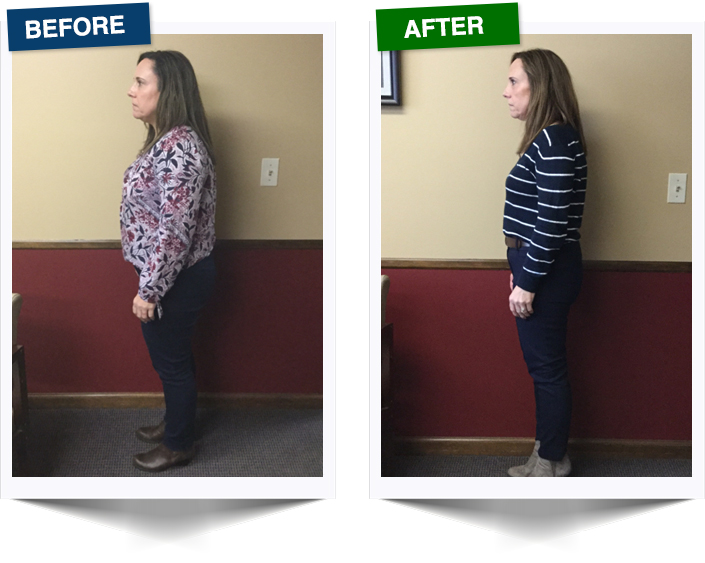 Weight Loss West Rochester NY Patient Testimonial